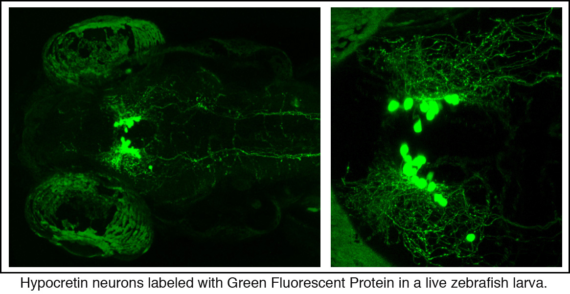 Hypocretin neurons labeled with Green Fluorescent Protein in a live zebrafish larva