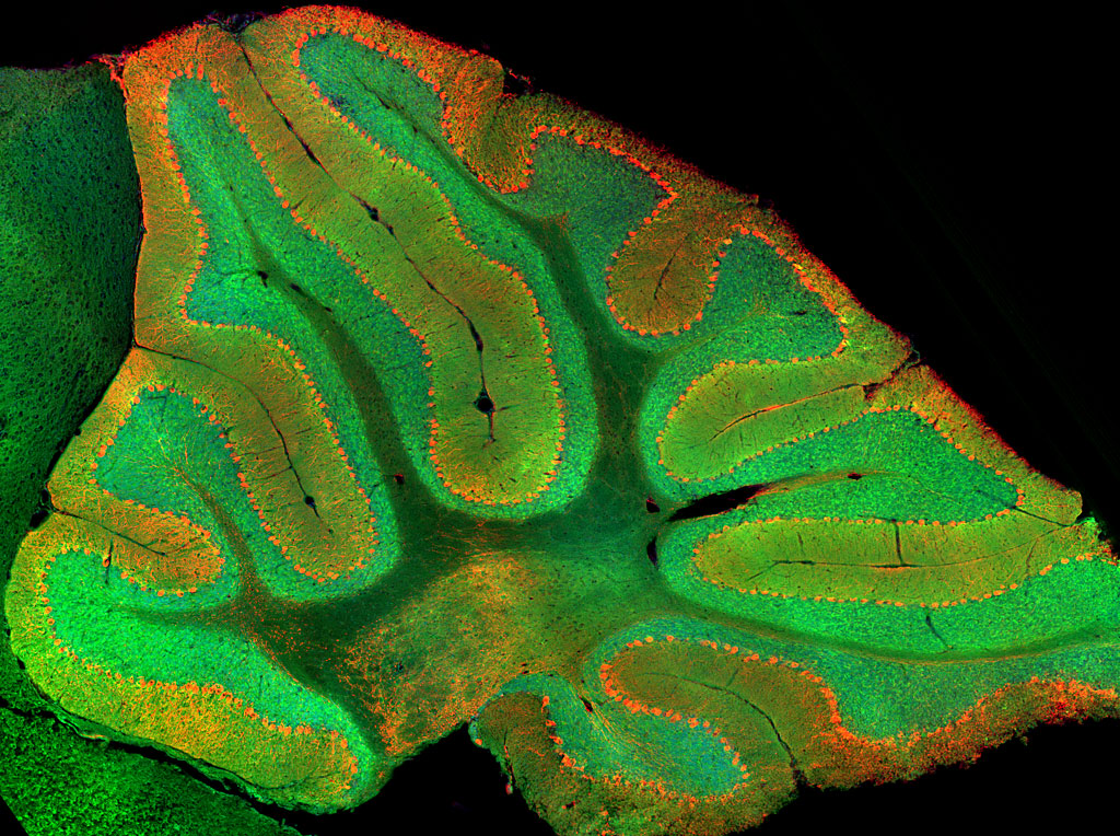 Image showing granule cells in the cerebellum