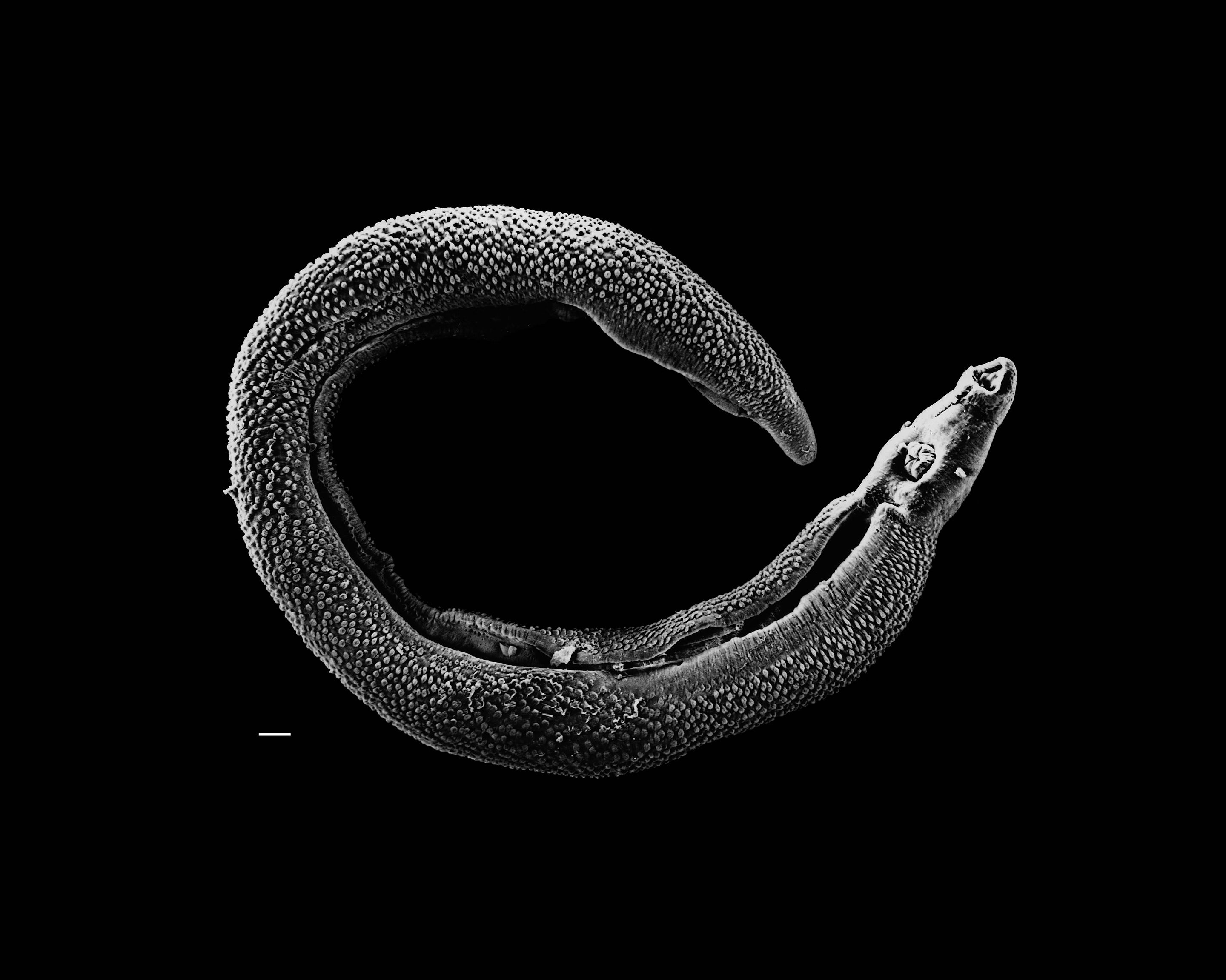 Electron micrograph of an adult male Schistosoma parasite worm. The bar (bottom left) represents a magnification of 500 μm.