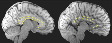 Left: A healthy brain with the corpus callosum outlined in yellow. Right: A brain missing its corpus callosum.