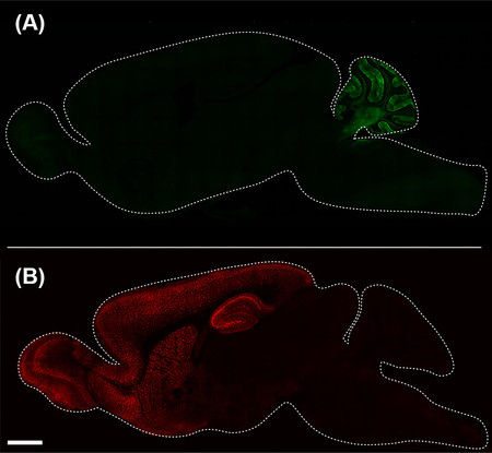 Two different parts of the mouse brain colored in red and green.