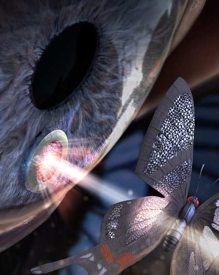 Artist's depiction of an ocular implant. (Credit: Choo Lab / Caltech)