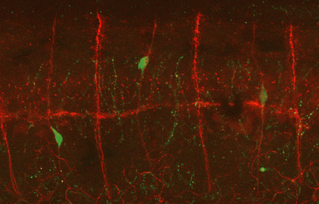 Migratory neuroblasts (embryonic nerve cells) traveling across spinal nerves (red) to reach the gut.