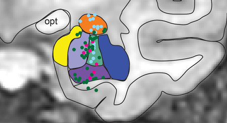 An image of a region of the brain overlaid with different colors.