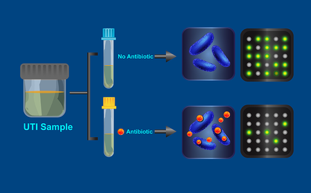 A visualization of how the antibiotic resistance test works.