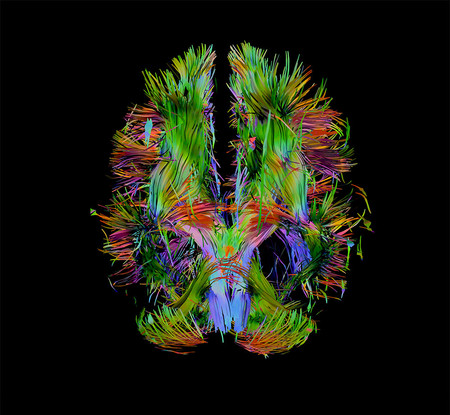 Visualization of the brain