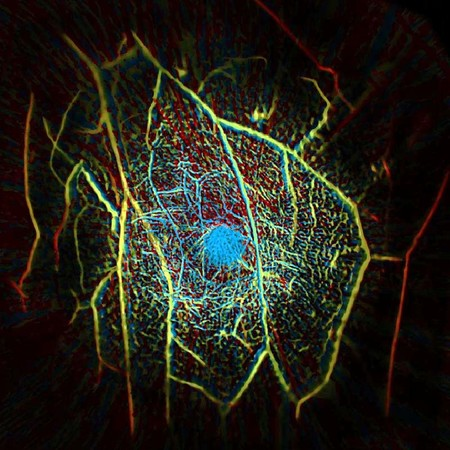 A false-color image of blood vessels within human-breast tissue.