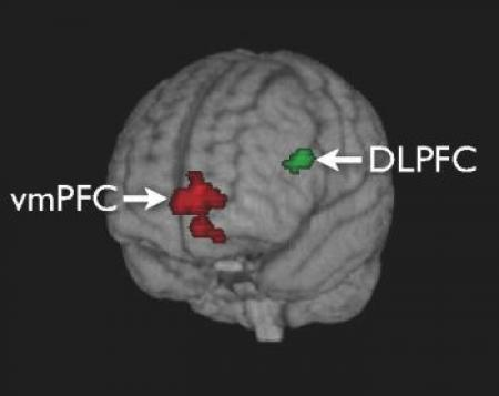 Medial prefrontal cortex and self-referential mental ...