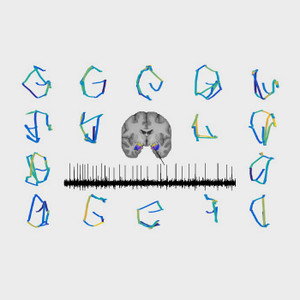 Illustrated representation of brain activity as tracked with eye movement.
