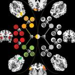 fMRI scans of brain regions involved in value judgements