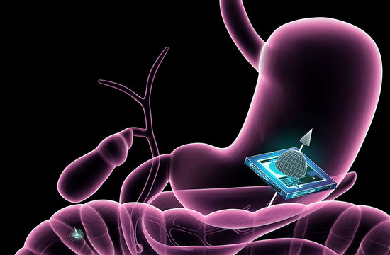 illustration of an ATOMS microchip localized within the gastrointestinal tract