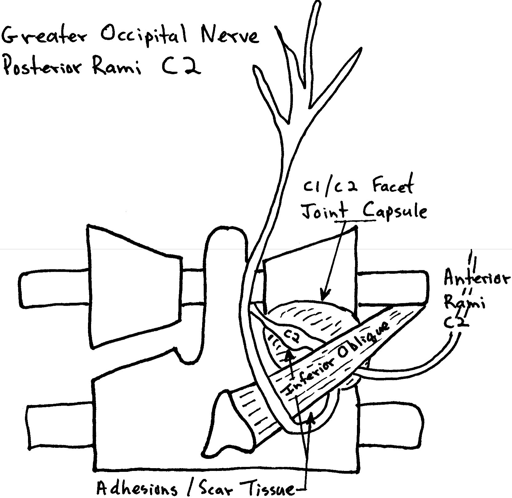The take-home clinical message from all of this is that problems (irritations, inflammations, compressions) of nerve roots C1, C2, and/or C3 can result in tongue symptoms. These irritations, inflammations, compressions can be foraminal (nerve root) or peripheral (facet, at the capsule, or at the inferior oblique muscle).
