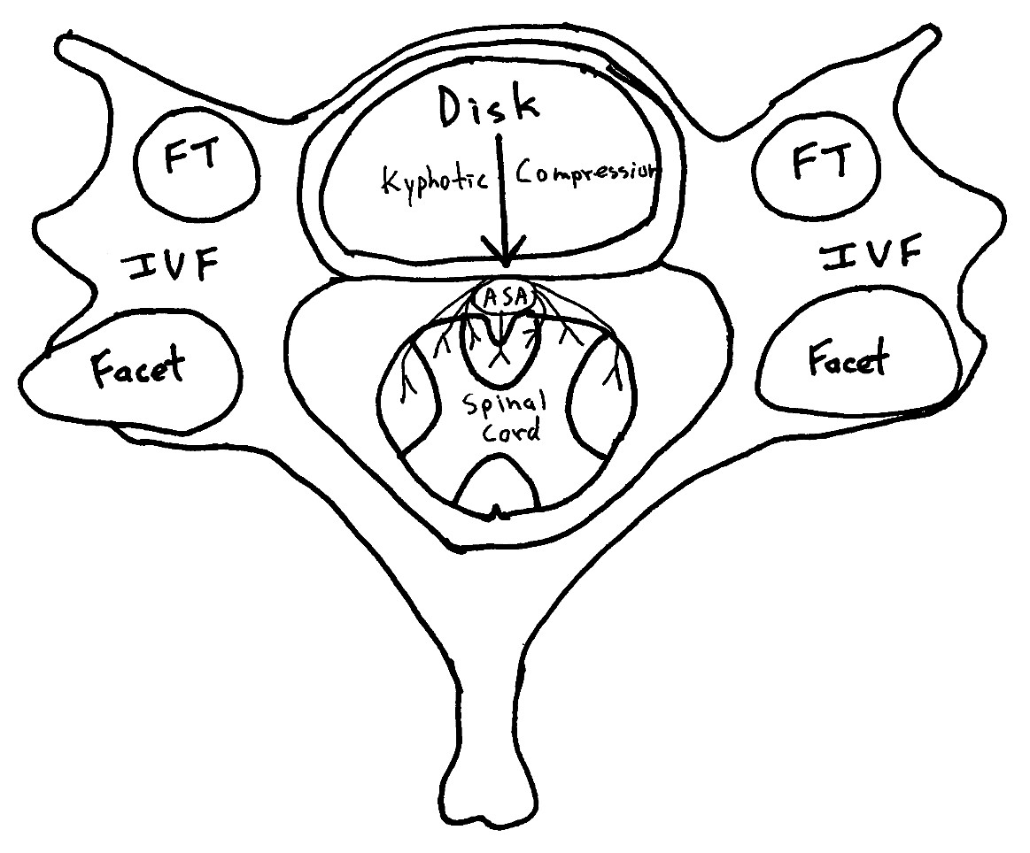 Cervical Axial View