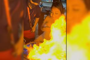 """Turista se quema el rostro por accidente del mesero en bar """"..."""