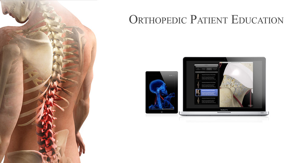 Ortopedic Patient Education Available on iPad & Mac
