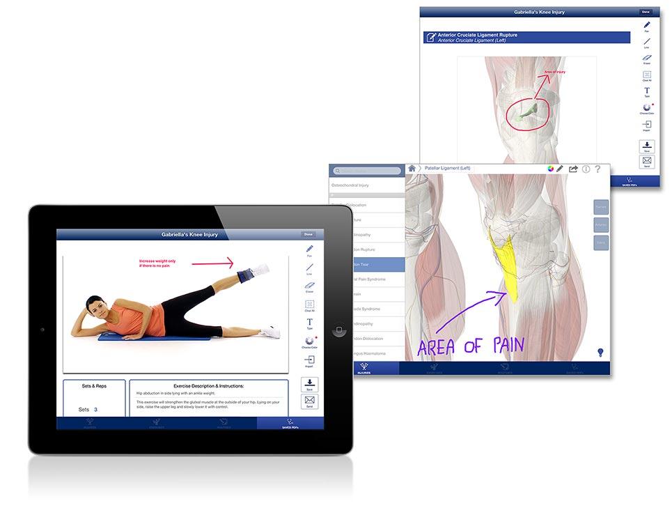 Rehabilitation Lower Limbs - Consult -interface screenshot