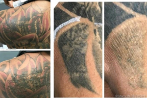 Tattoo Removal Practice, Coconut Creek