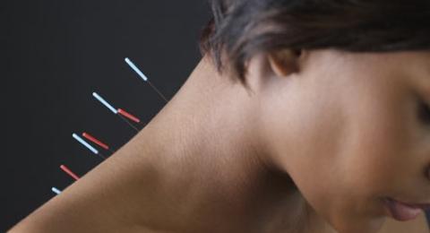 0-271452860-acupuncture