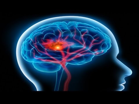 What Causes Stroke?