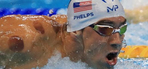 cupping-at-olympics-michael-phelps