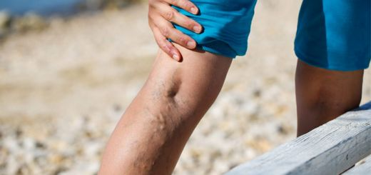 Help Vanish Varicose Veins Very Naturally