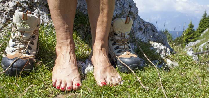 varicose-feet
