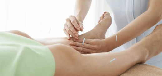 acupuncture-edema
