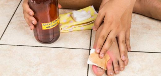 7 Natural Remedies To Help Get Rid Of Warts