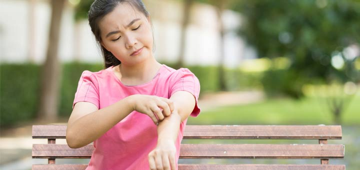 asian-woman-eczema