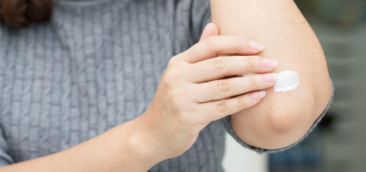 Homemade Cream To Help Control Eczema