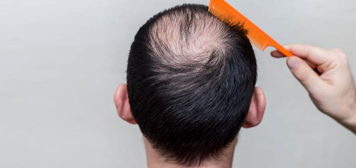 balding-man-with-comb