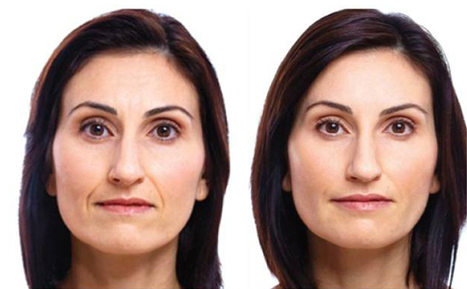 Facial Fitness picture