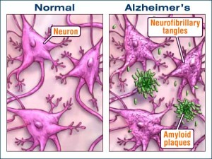 Health Beat: Unfortunately, No Alzheimer's Miracle is in Sight