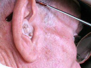 Health Beat: Hearing Aids Should Be Cheaper And Easier To Obtain