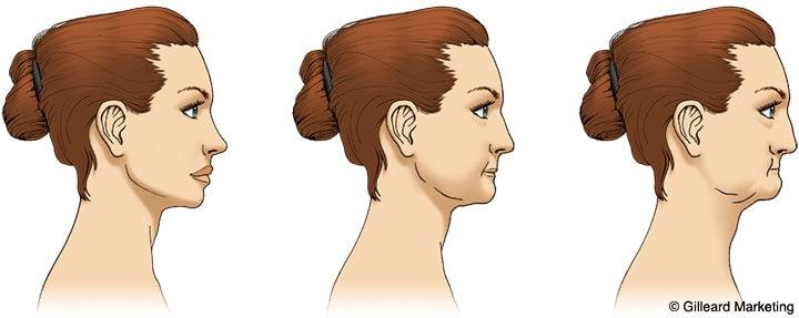 Jaw bone resorption diagram