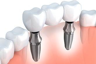 Diagram of implant-supported bridge