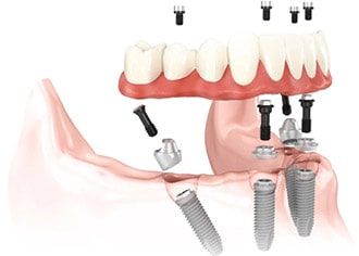 Illustration of lower arch using four implants