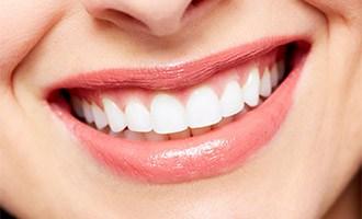 A woman's smile