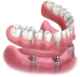 Illustration of snap-in dentures supported by implants