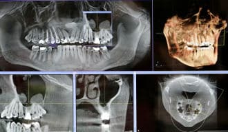 State-of-the-art Implant Treatment Planning