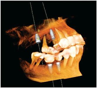 Advanced Dental Technology