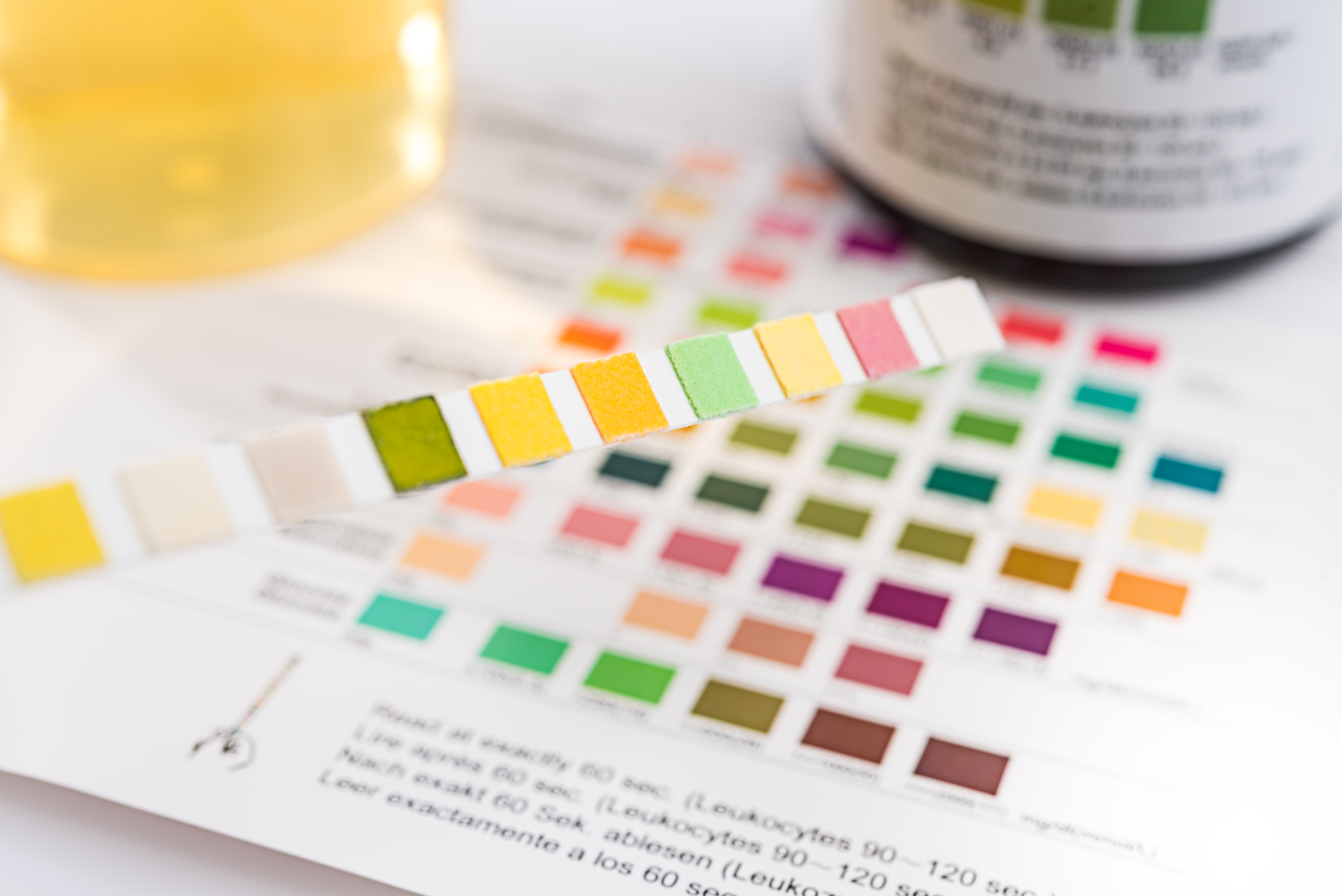 What Happens When You Fail a DOT Employment Drug Test? | Career Trend