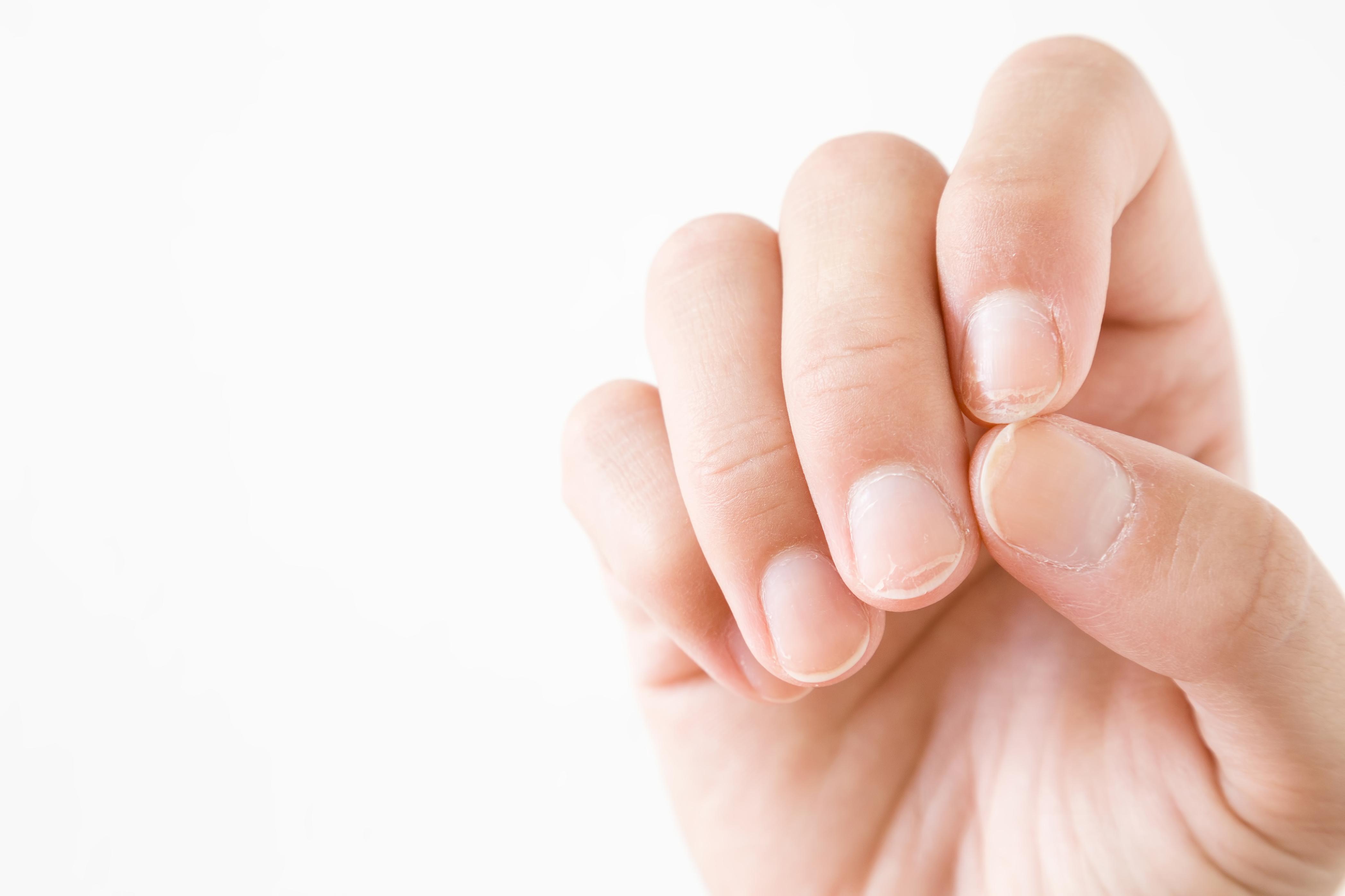 Do Vitamin Deficiencies Cause Fingernail Ridges | Healthy