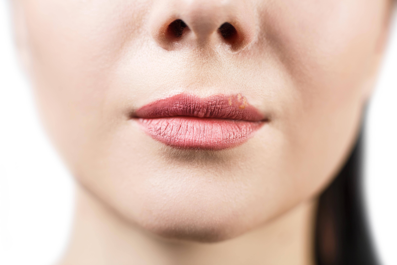 Porque salen bolitas blancas en los labios mayores