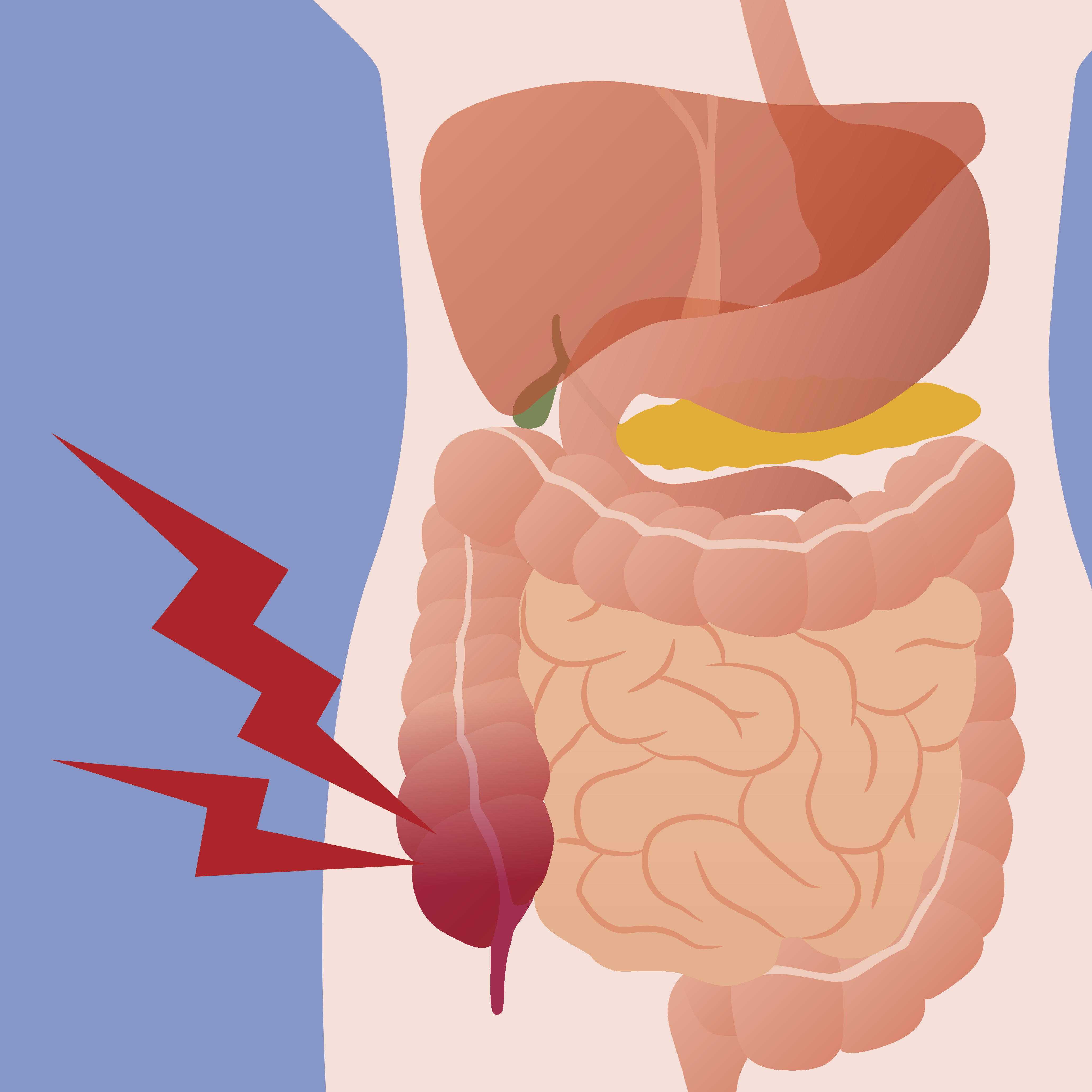 The first signs of appendicitis in women