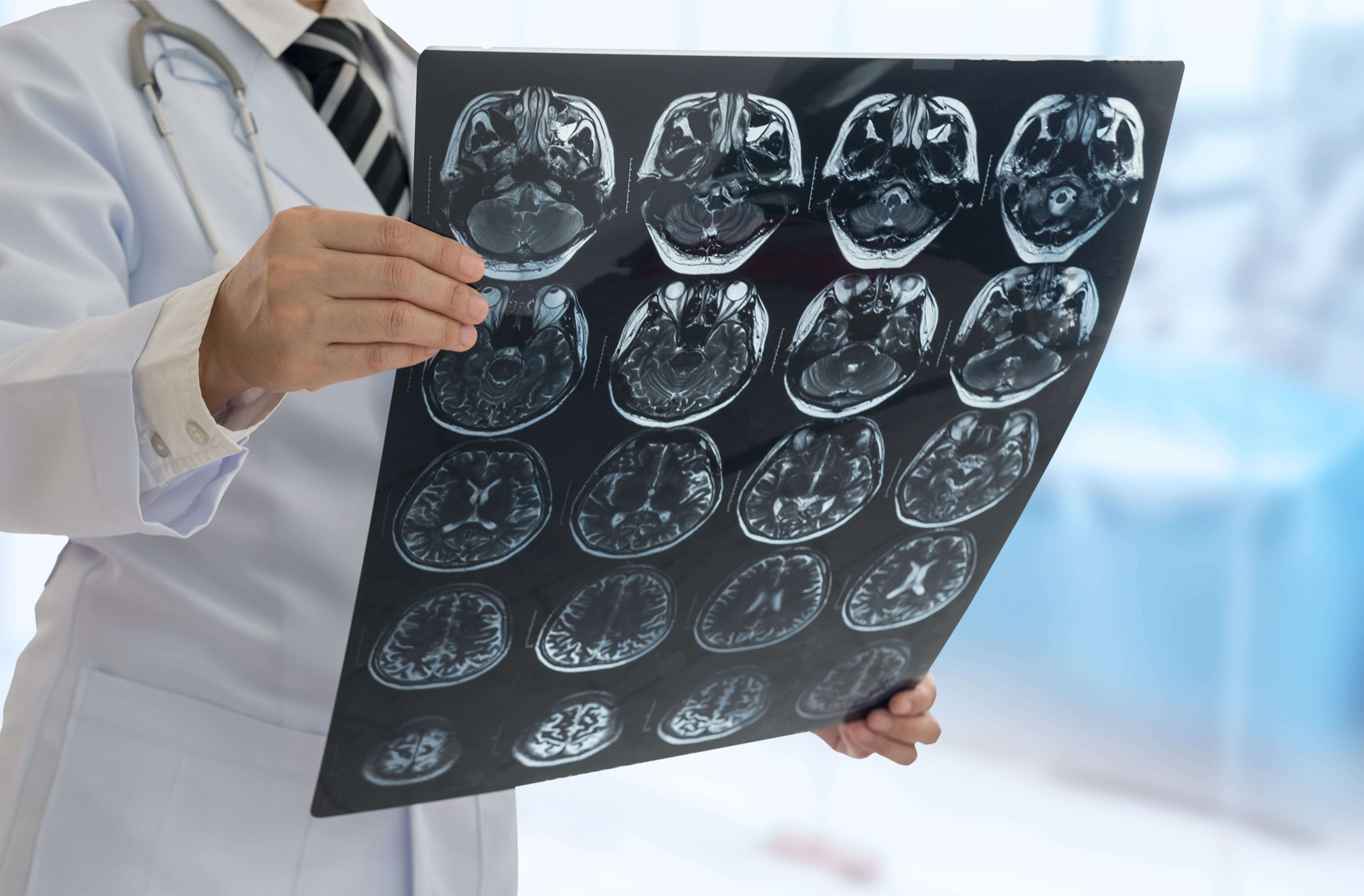 Training Required to Become a Neurologist | Career Trend