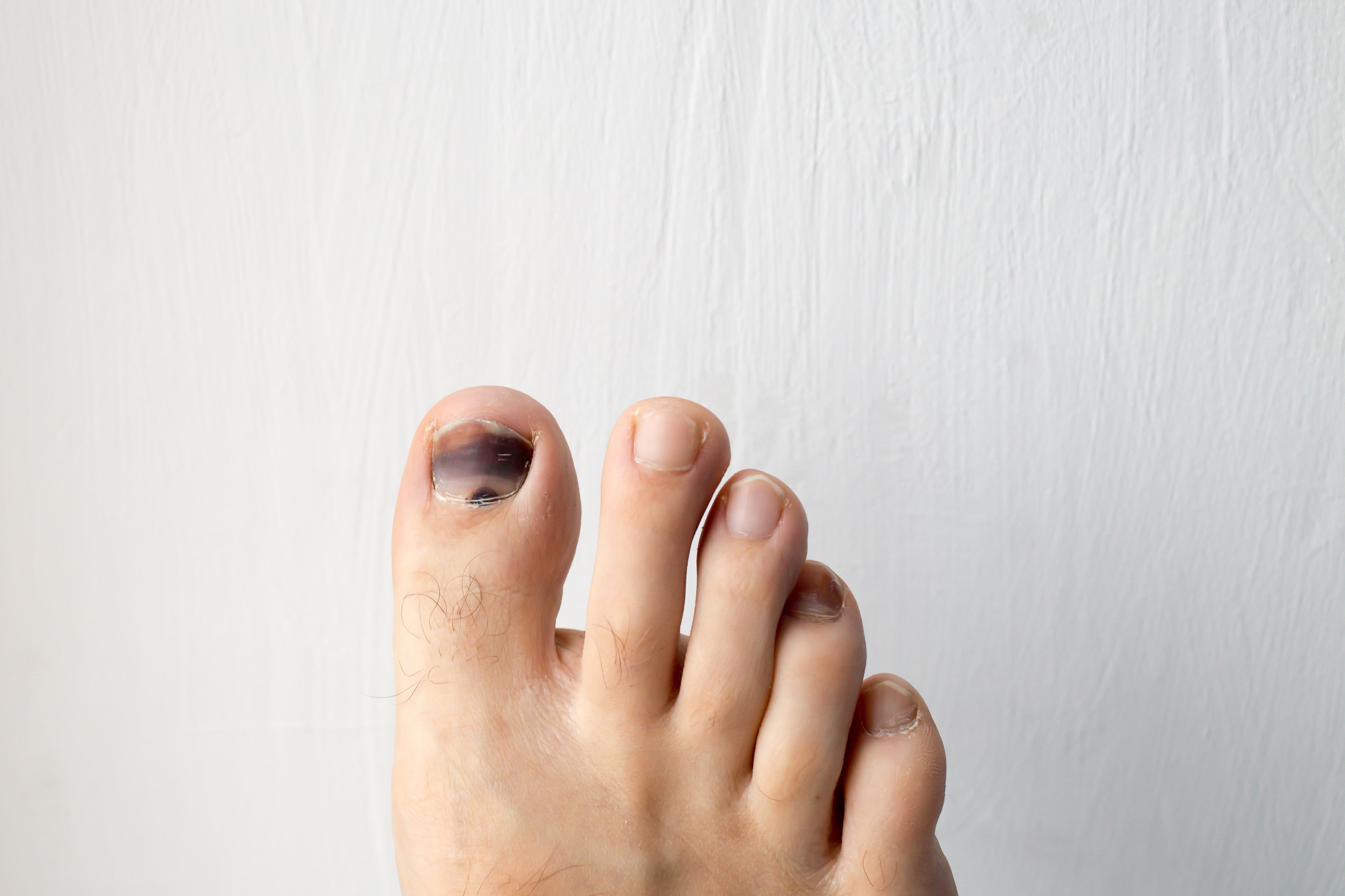 Causas de las manchas negras en las uñas de los pies   Muy Fitness