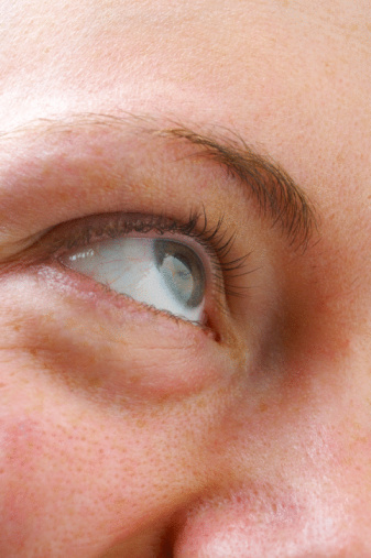 Can You Exercise Away Bags Under the Eyes? | LEAFtv