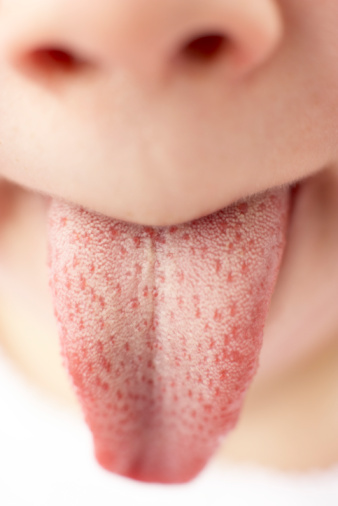 Pimple-Like Bumps on the Tongue