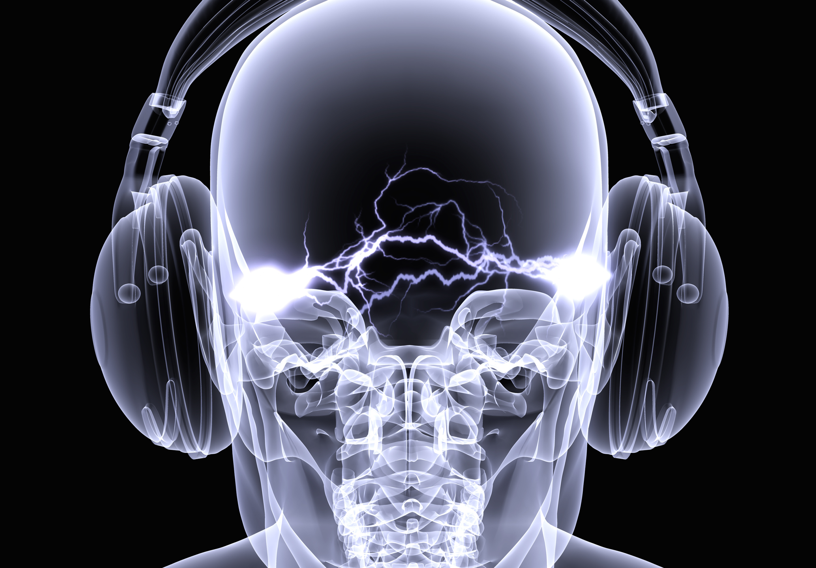 A visualized X-Ray of a brain with some electric waves and headphones